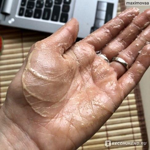 Антицеллюлитное мыло ТДС - необычный, но очень эффективный способ ухода за кожей тела. В составе натуральная люфа, морская соль, кофе и красный перец. Будет горячо!