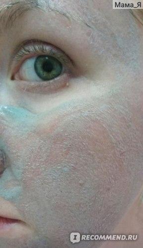 Средство, которое уже после первого применения заметно изменит Вашу кожу. А со временем поры станут чище и менее заметны, а общий вид кожи здоровый и сияющий.