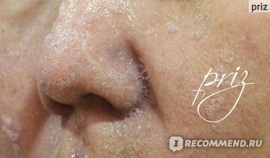 Черная_косметика. Натуральное мыло для лица Ластик. Стираем черные точки!